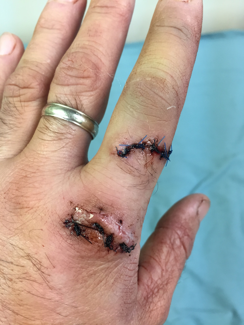 My finger with 9 stitches two days after the accident.